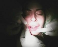 operacija-usana